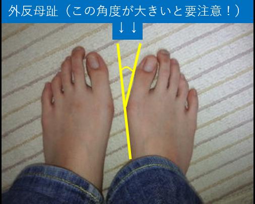 外反母趾(角度が大きいと要注意!)