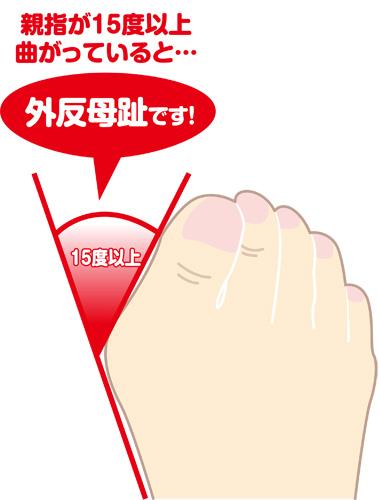 親指が15度以上曲がっていると外反母趾です。