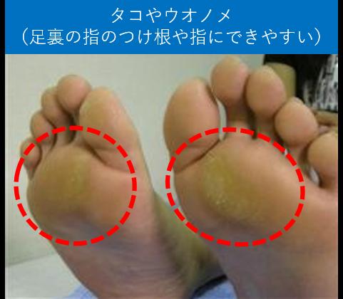 タコやウオノメ(足裏の指のつけ根や指にできやすい)