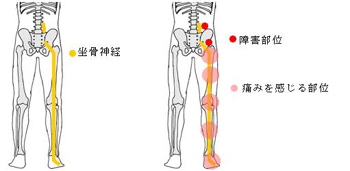 坐骨神経痛 痛みの部位