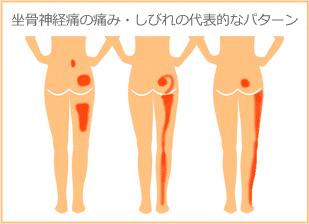 坐骨神経痛の痛み・しびれの代表的なパターン